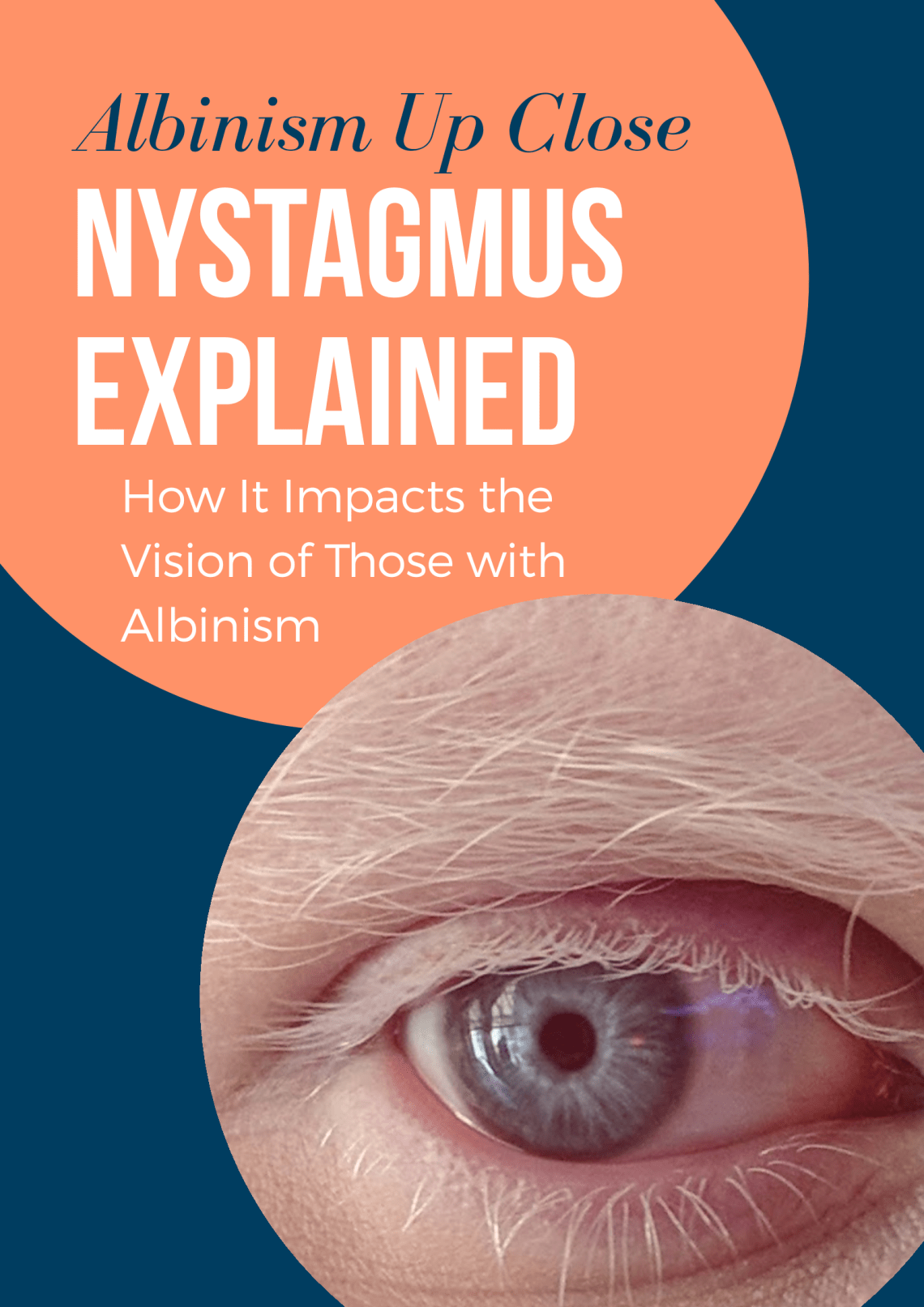 Nystagmus explained featured image