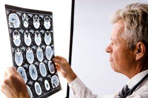 especialidad_neurología