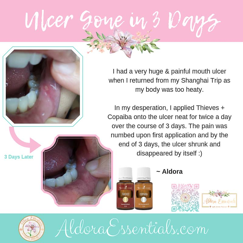 YL, Young Living, Thieves, Canker Sores, Copaiba, Essential Oils, Natural Remedy