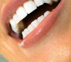 Beberapa Cara Menjaga Kesehatan Gigi Dan Mulut
