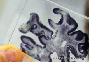 Израильские учёные обуздали болезнь Альцгеймера