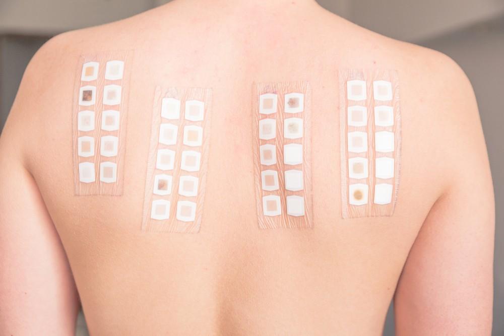 punktowe testy skórne technika wykonania