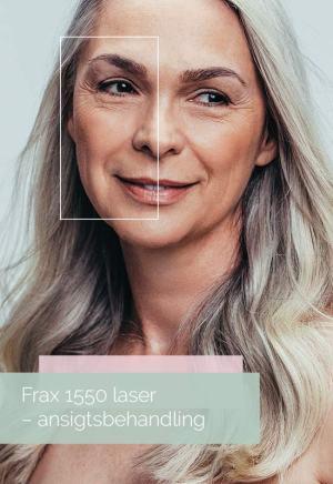 Frax 1550 ansigtsbehandling gavekort