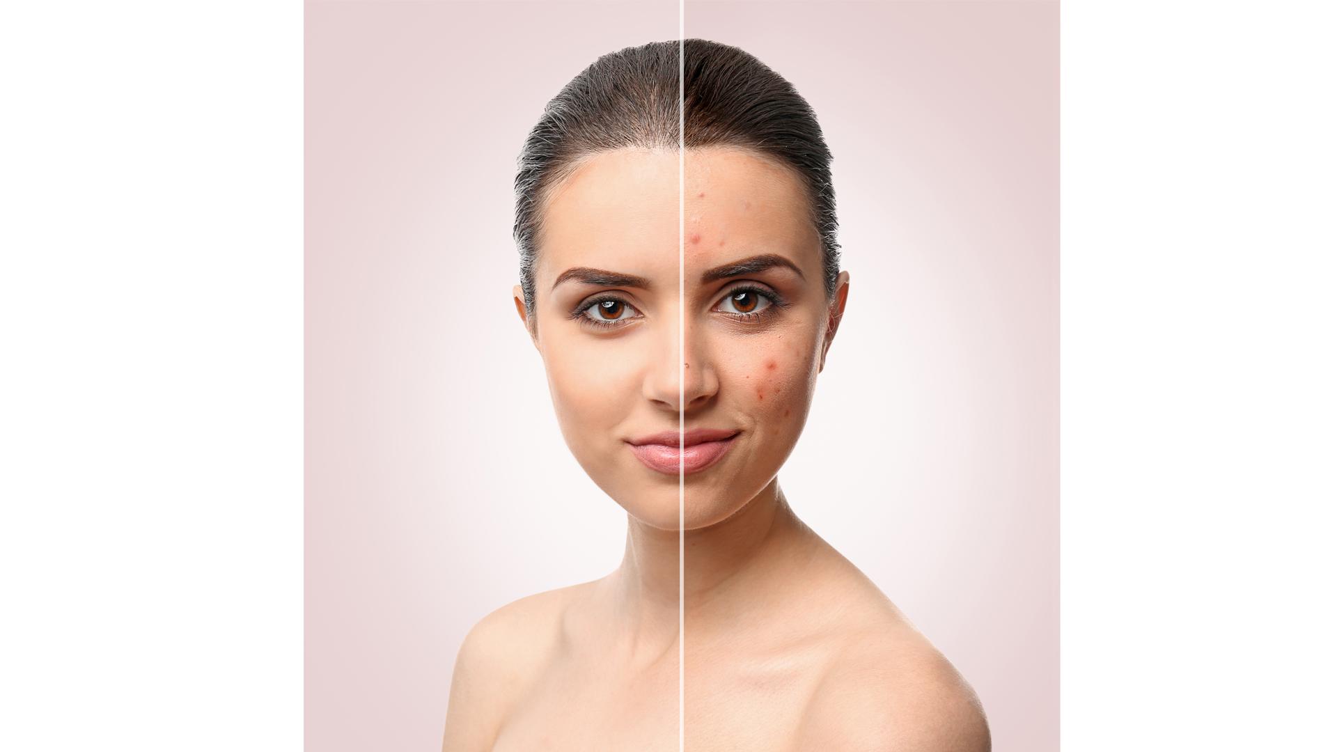 Hautpflege Reinigung