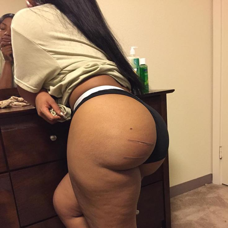 Oh no! Stunning IG model accidentally sits on flat iron and burns her fake butt (photos)