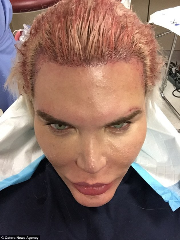 Human Ken Doll Rodrigo Alves displays his blood-soaked hairline as he undergoes his 59th transplants in LA (Photos)