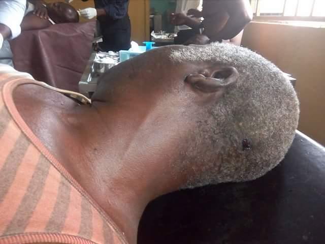 5a0bd51a02e2b - Photos: 8 injured as gunmen attack passenger boat along Keme-Ebiama/Ogboinbiri waterways in Bayelsa