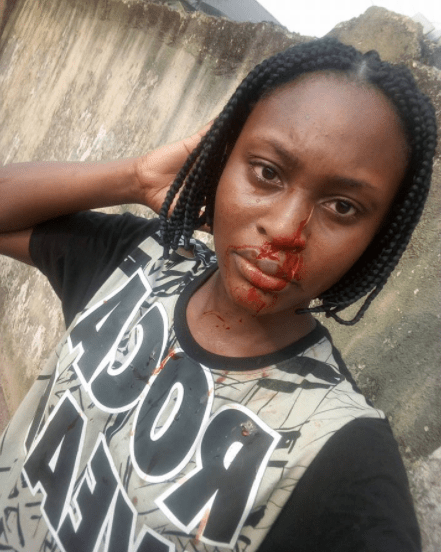 5a587dddd3b9c - 300 level UNIPORT student slashes her roommate's nose with razor (photos)