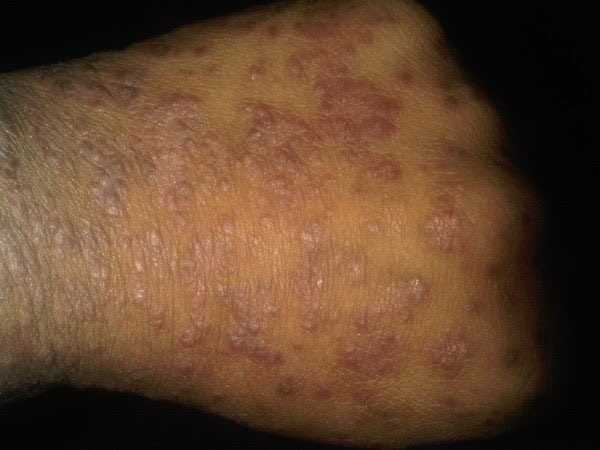 Everything you need to know about Psoriasis