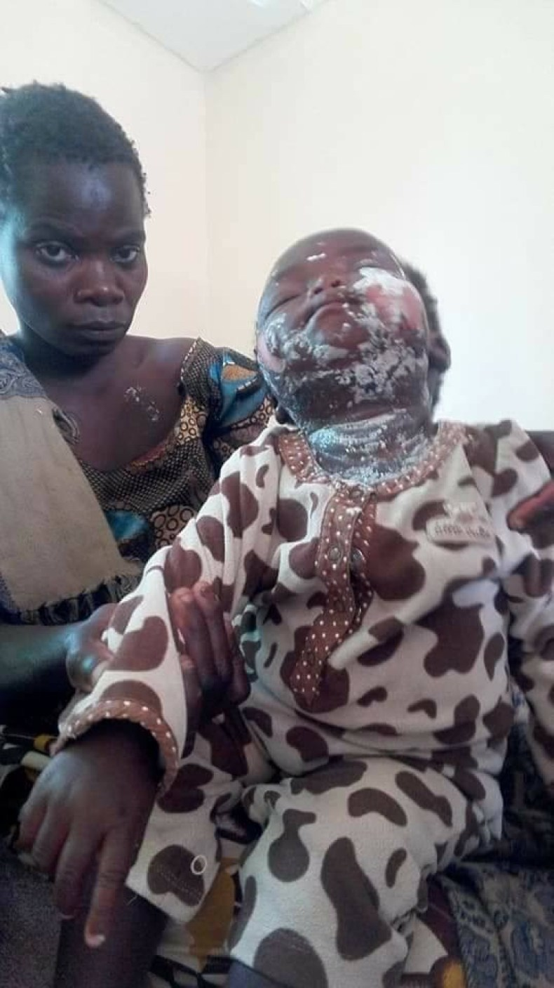Heartless Landlady pours hot porridge on her tenant