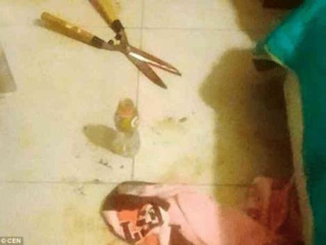 Woman chops off her boyfriend