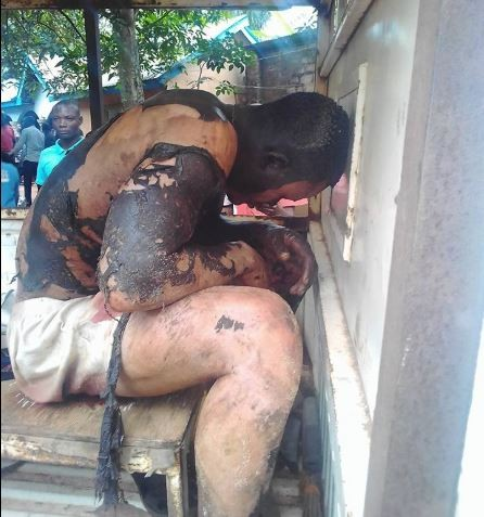 Graphic video: Man gets badly burnt while trying to steal from a transformer in Anambra State