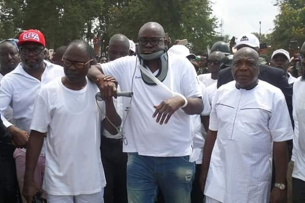 """Photos of """"Injured"""" Governor Fayose addressing Ekiti people at the Government House"""