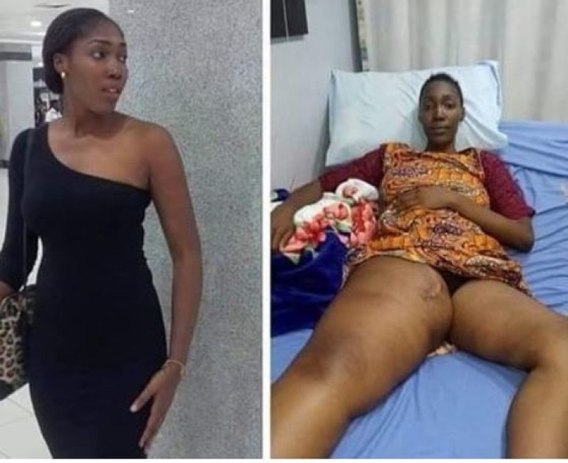 Nigerian lady who solicited for help to treat cancer, Rachel Fubara has died in India