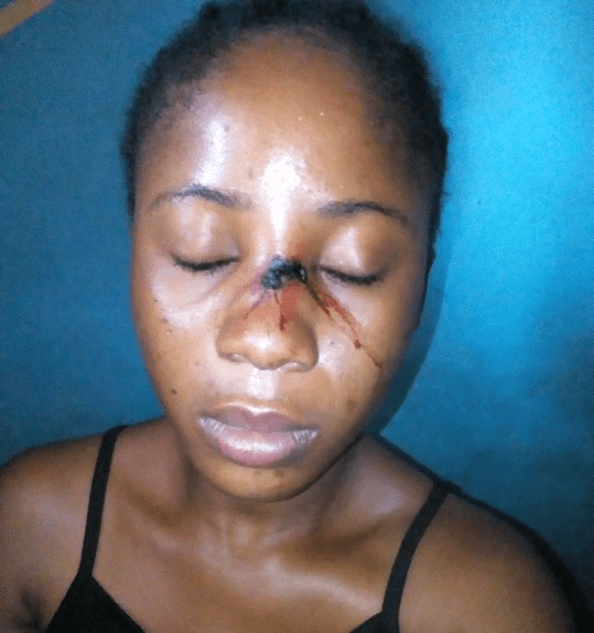 Auchi Polytechnic lecturer flees after allegedly inflicting female student with injury