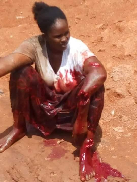 Abusive husband arrested for butchering his wife after a disagreement (graphic photo)