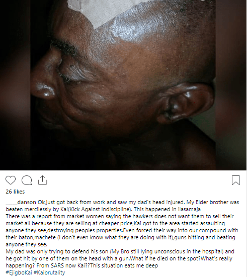 Woman accuses KAI of brutalizing her father and causing her brother to lose consciousness