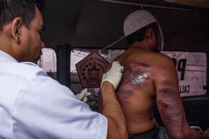 Paedophile begs for mercy after receiving 5 lashes but doctor gives go ahead for 95 more lashes