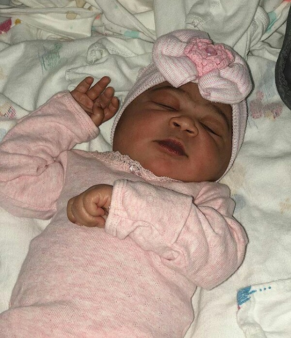 """""""God saved me"""" - Young woman born with facial deformity writes as she welcomes a beautiful baby girl"""
