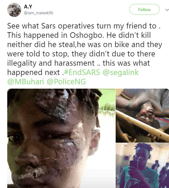 Man accuses SARS official of brutalising his friend, leaving him with serious injuries (photos)
