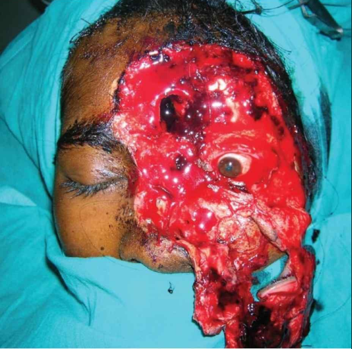 Doctors reconstruct the face of a woman after it was torn by her husband and it