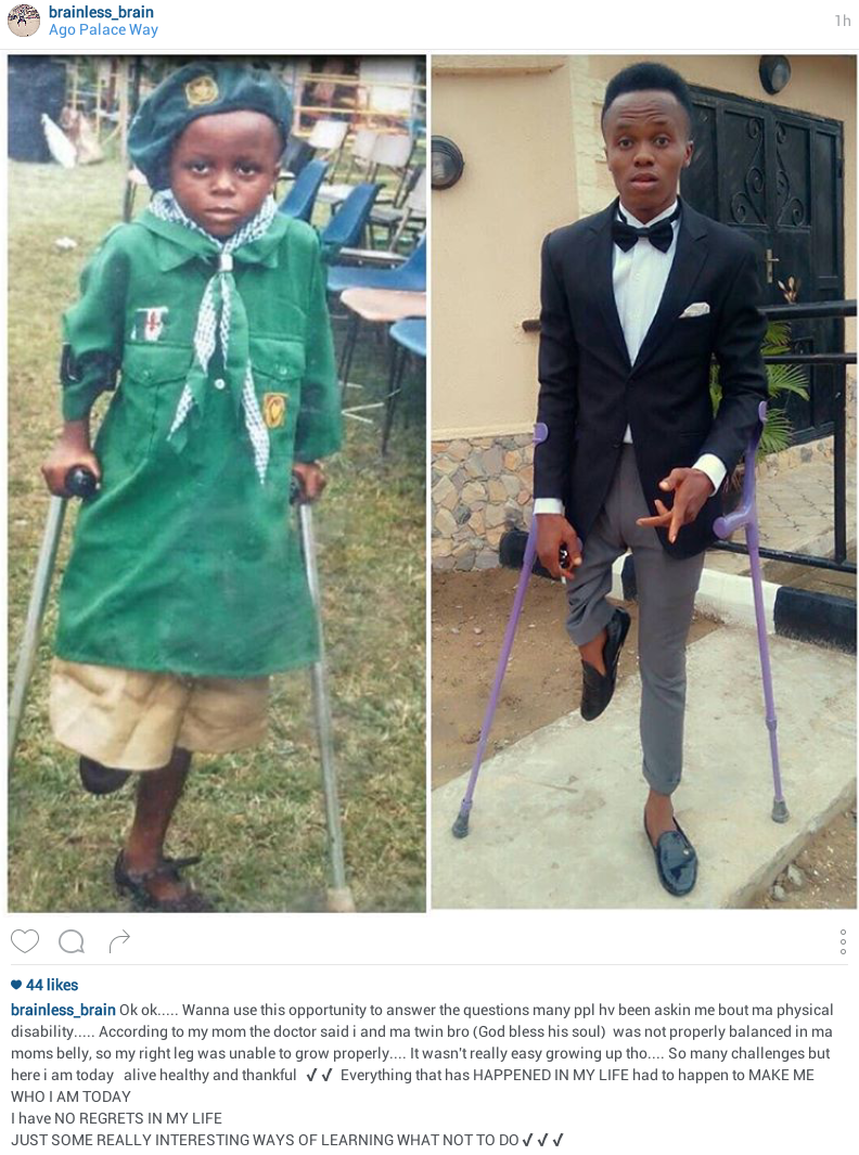 Young Nigerian amputee footballer reveals how he became physically disabled