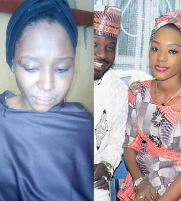 Update: Bayero University Law undergraduate says she stabbed her hubby in self defense