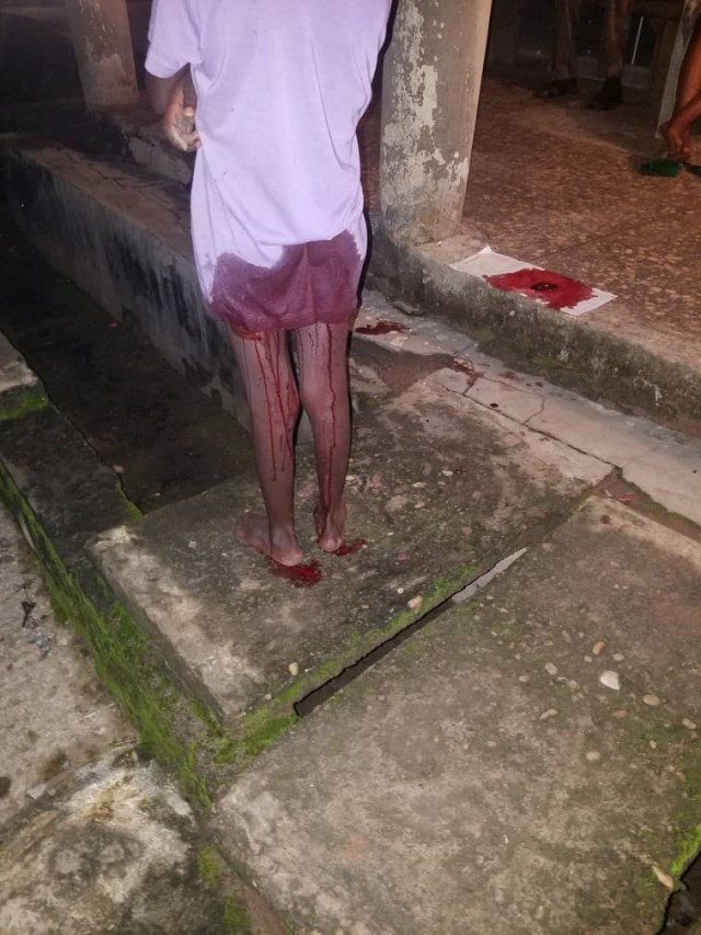 Little girl dragged into a shop and raped in Ondo state (graphic photos)