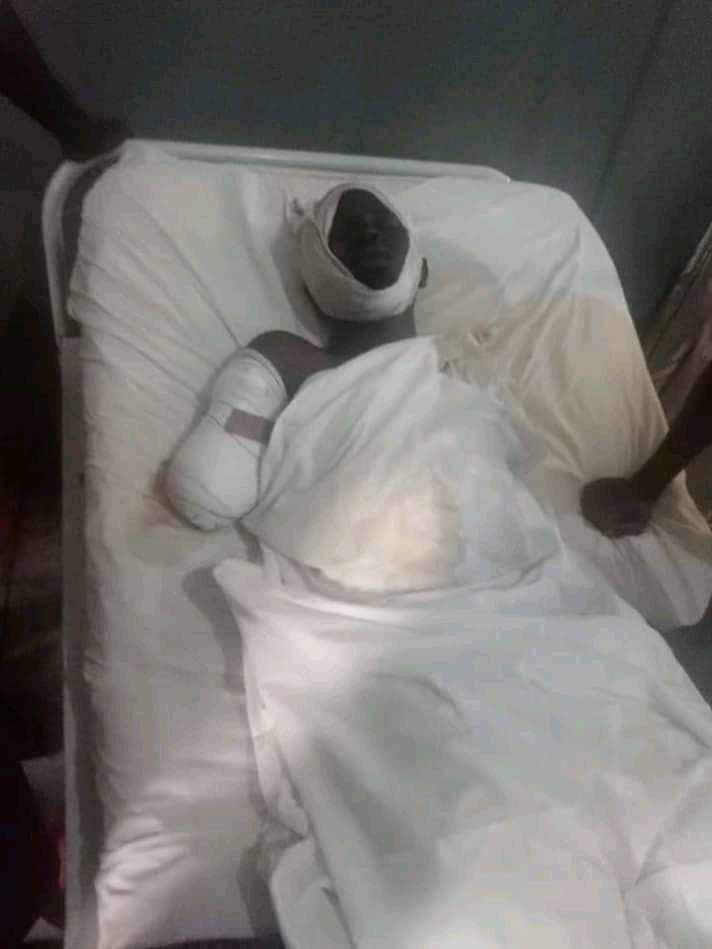 Photos: Corps member who lost both arms in ghastly auto crash to get automatic job, artificial limbs - NYSC DG
