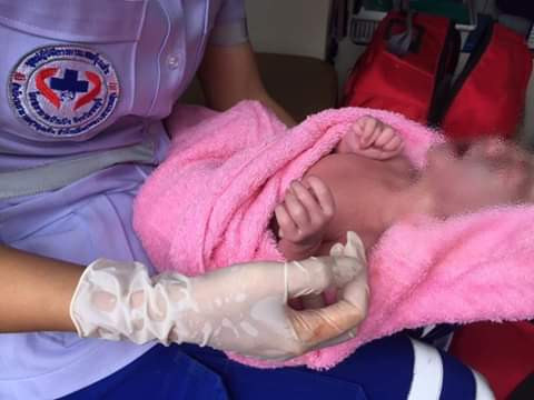Photos: Woman gives birth to baby girl with 12 fingers and 12 toes