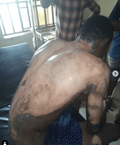 Lady pours hot water on her daughter