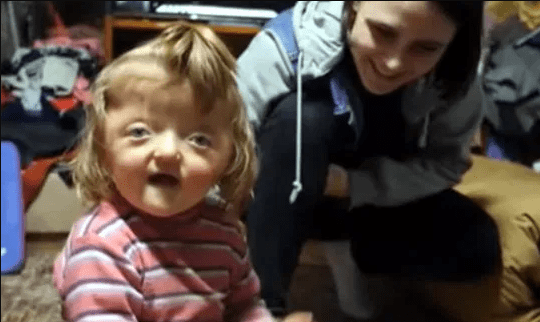 Toddler banned from attending nursery because deformed skull ?would scare other children?
