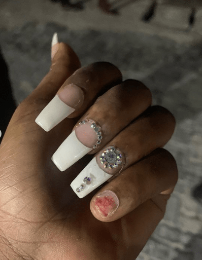How Nigeria policemen attacked me at night and broke my Finger Nails (photos)