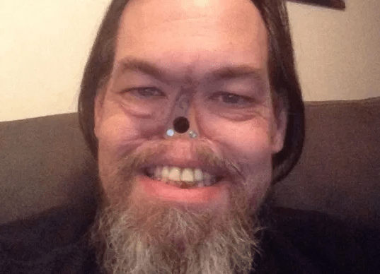 """""""All I want is to fall in love"""" grandfather who lost his nose after nasal cancer ravaged his face says"""