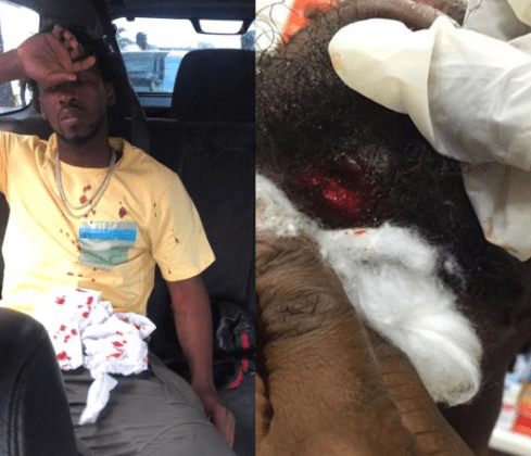 Orezi survives car crash on Third Mainalnd bridge, suffers 'broken jaw' (Photos)