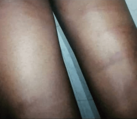 Nigerian Student says he was flogged by teachers for identifying as a Marlian (photos)