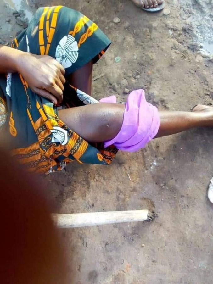COVID-19 Lockdown: Disturbing photos of women