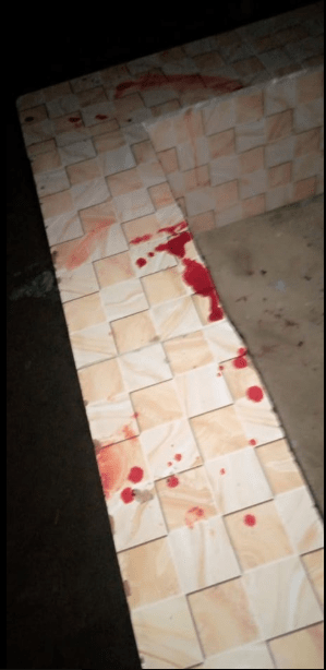 Outrage as man batters his wife then brags about it on Facebook by sharing photos of her bleeding face  Outrage as man batters his wife then brags about it on Facebook by sharing photos of her bleeding face (PHOTOS) 5ebb0f2e330b4