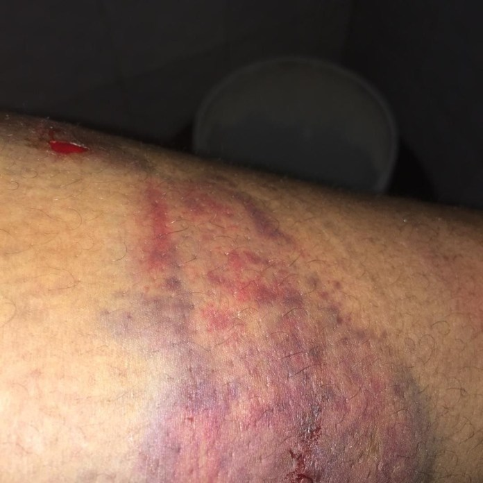 Nigerian lady shares horrific photos showing injuries inflicted on her sister by her husband as she calls for justice (photos)