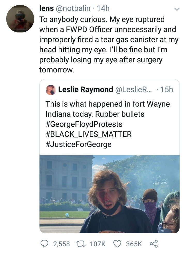 Man injured by police during George Floyd protest reveals he has lost one eye after surgery