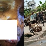 NEWS: Lady left with horrific injury after allegedly being punched by policeman she stopped from assaulting a pregnant woman in Lagos