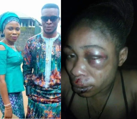 Man allegedly brutalizes wife after refusing to abort 3 month-old pregnancy