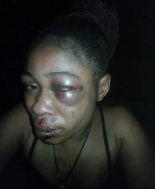 Woman hospitalized after she was allegedly brutalized by her husband for refusing to abort her 3-month-old pregnancy