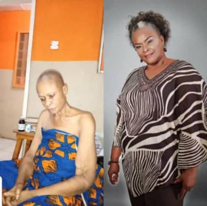 Veteran Nigerian actress, Ify Onwuemene seeks financial support as she battles cancer