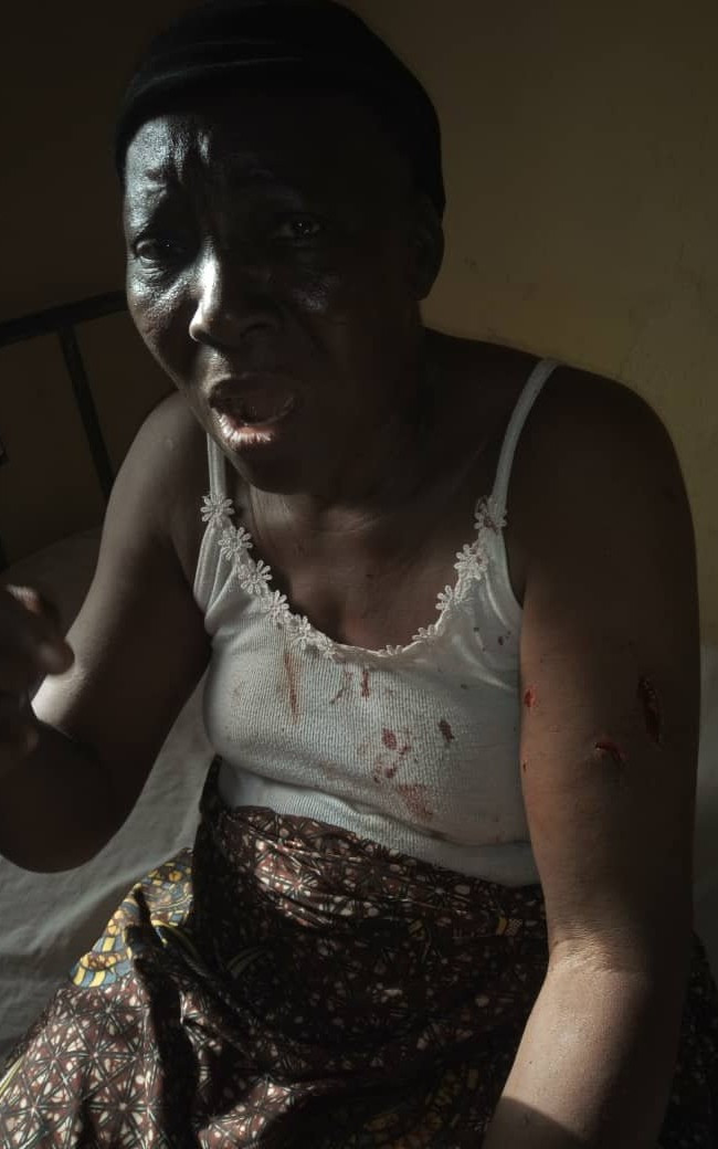 NSCDC officer and his brother accused of brutalising a grandmother and her daughter (graphic photos)