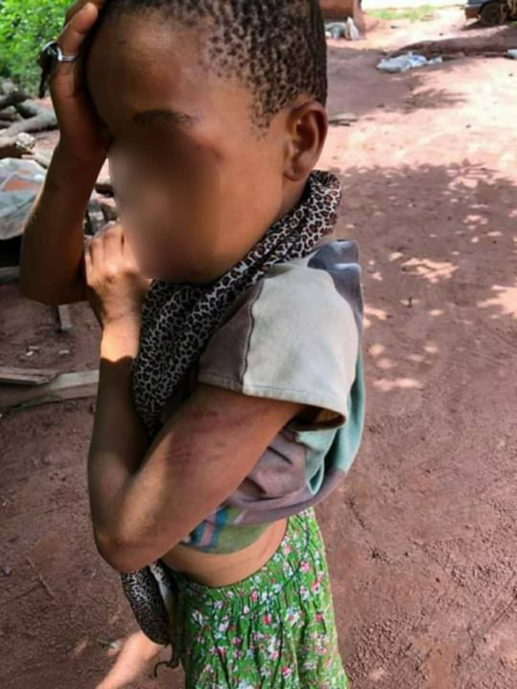 Police arrest couple for brutalizing their 12-year-old daughter in Enugu (photos)