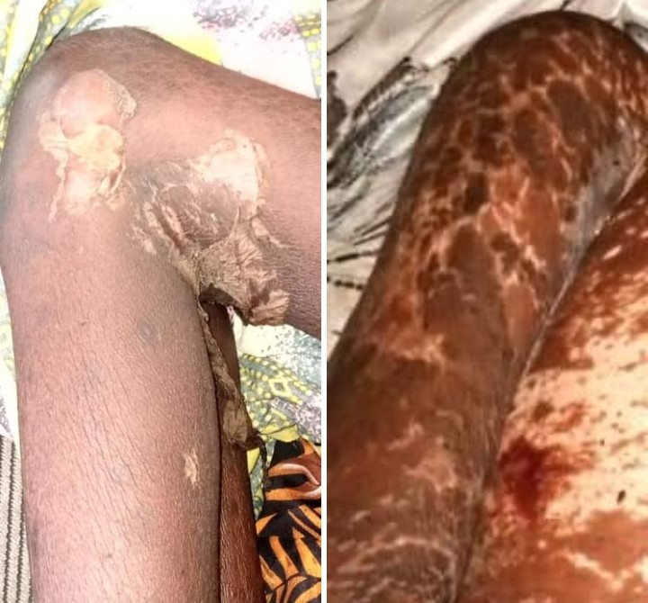 Edo girl, 9, rots away and dies after being' raped for rituals' by a 60-year-old chief who is now on the run