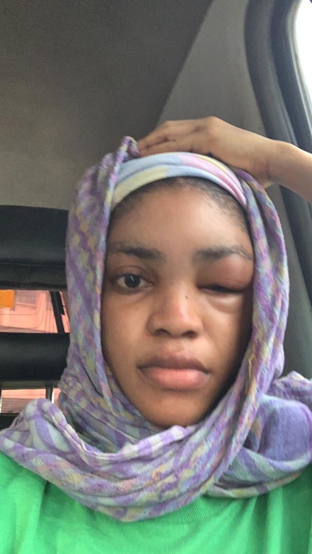 Lil Frosh called out for allegedly assaulting girlfriend