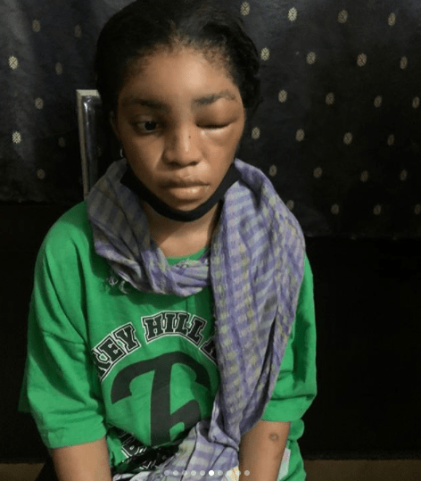 DMW act, Lil Frosh called out for allegedly assaulting girlfriend