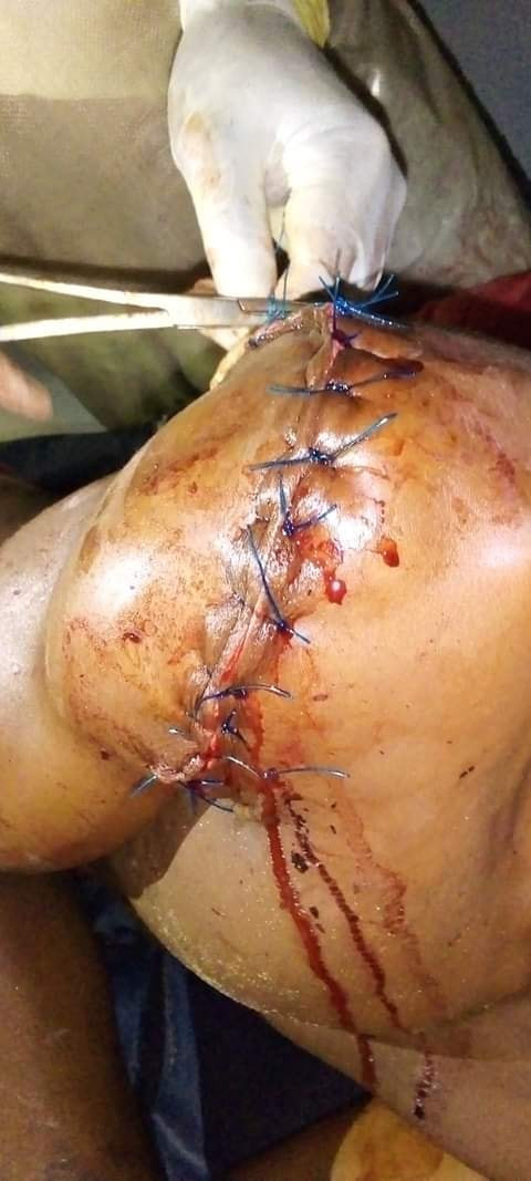 Man ambushed and brutally attacked by four persons in Rivers State